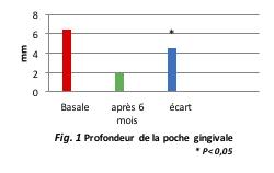 Fig. 1 Profondeur de la poche gingivale